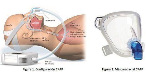 Primafrio y la UPCT crean respiradores para pacientes Covid